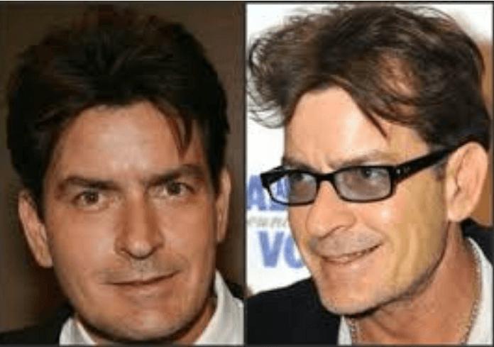 Female celebrities losing hair