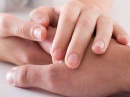 Pitting on fingernails