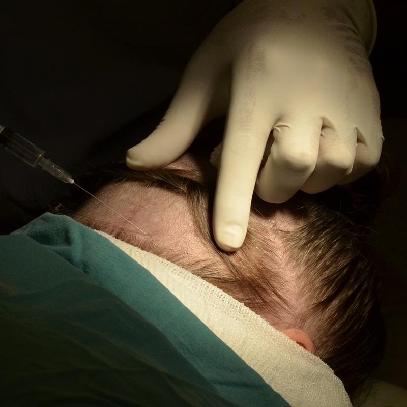 донорские графты для пересадки волос