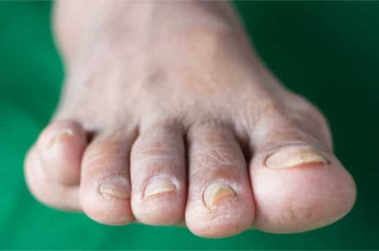 Hard discolored toenails