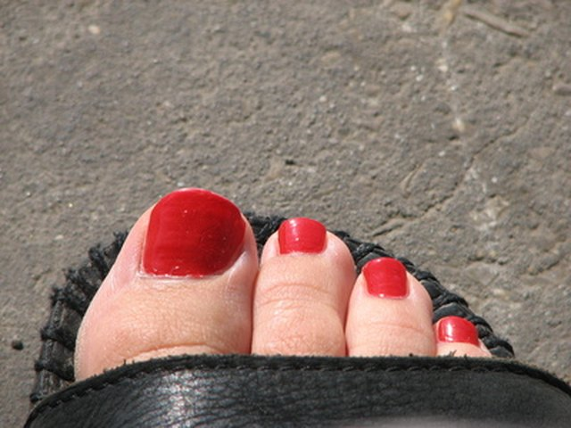 Why do toenails turn yellow with age