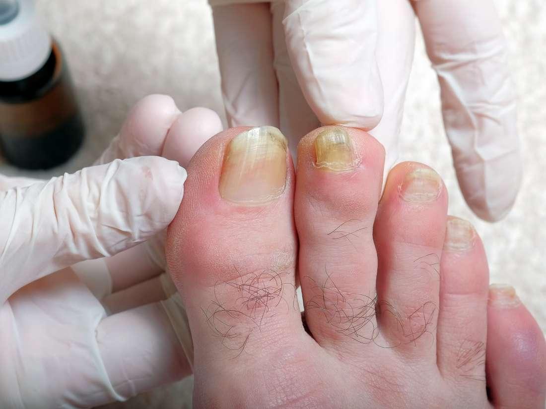 Big toenails yellow