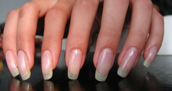 Fingernails growing