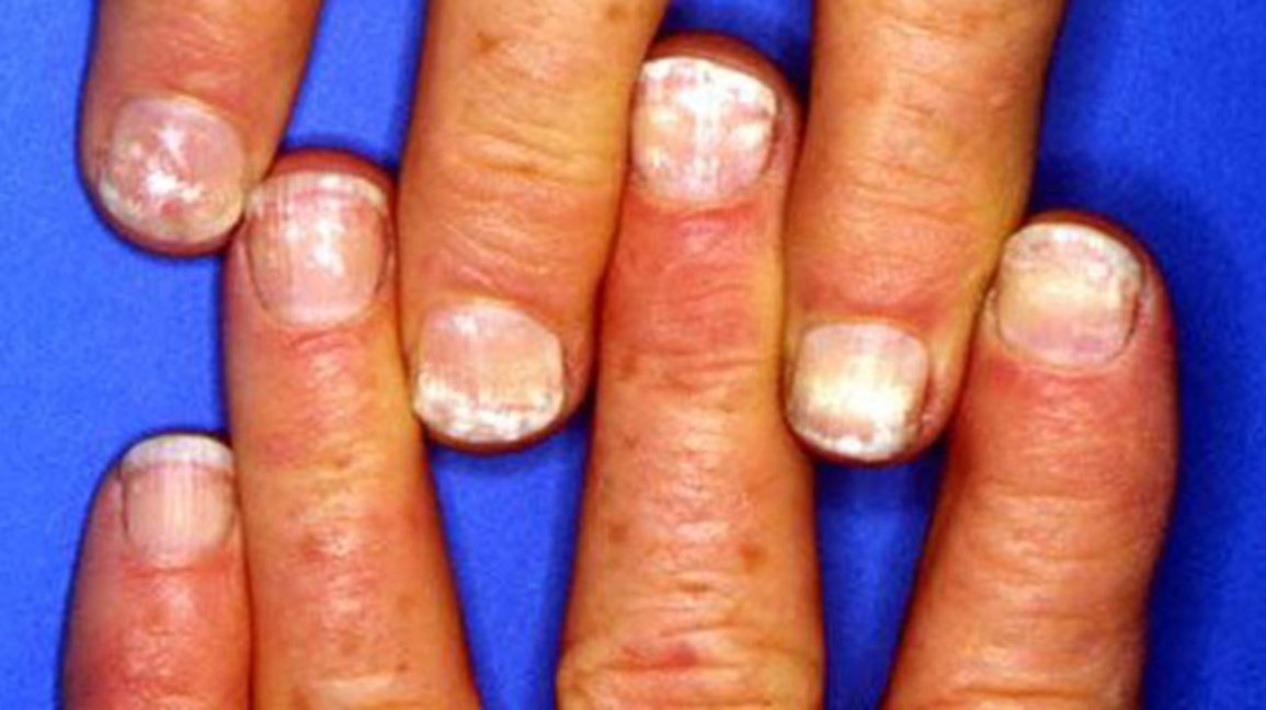 Nails white patches