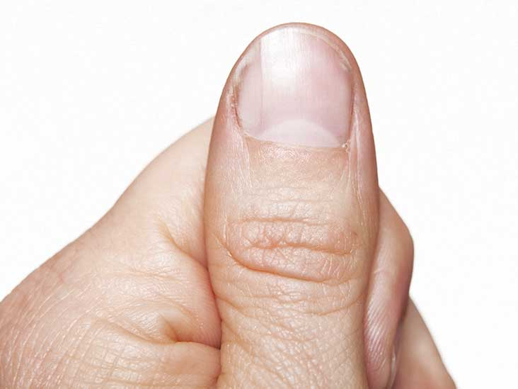 Pits on fingernails