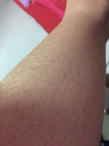 what to do for extremely dry skin 38312204b2501