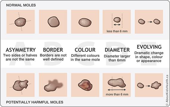 mole removal Singapore