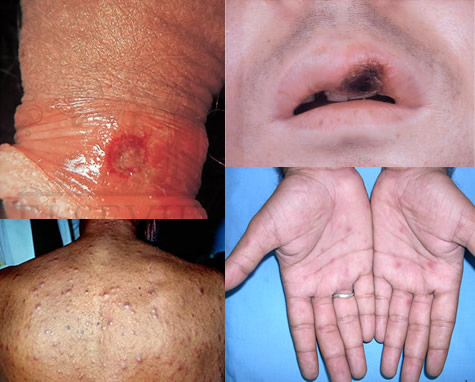 syphilis std testing singapore