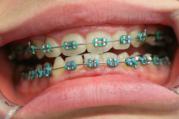 Metal braces Singapore