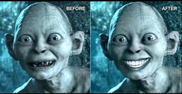 before after teeth whitening