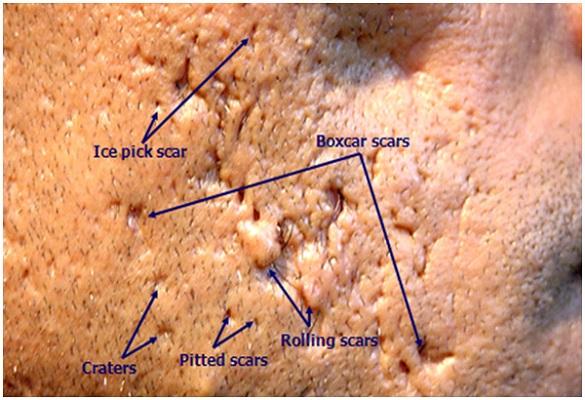 Acne scars Singapore