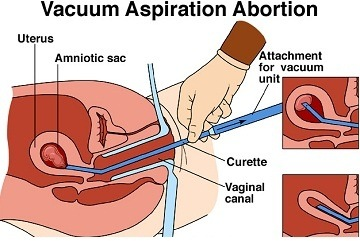 Surgical abortion Singapore