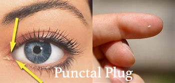 Punctal plug Singapore