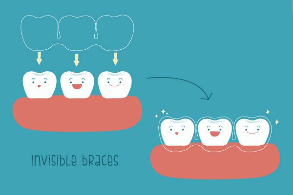 clear aligners singapore