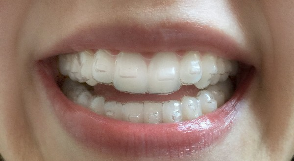Invisalign braces Singapore