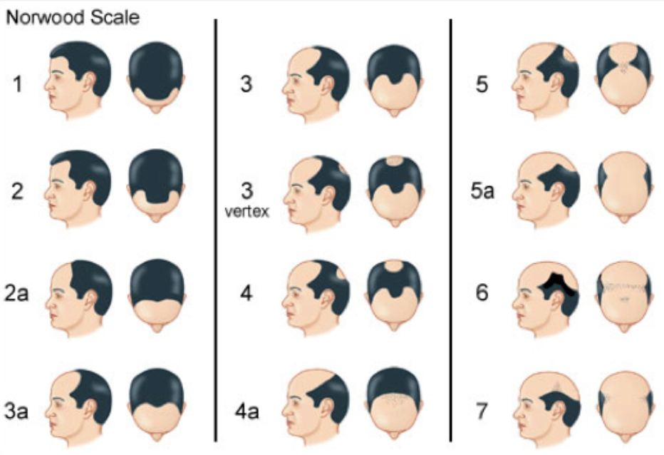 Hair loss treatment Singapore