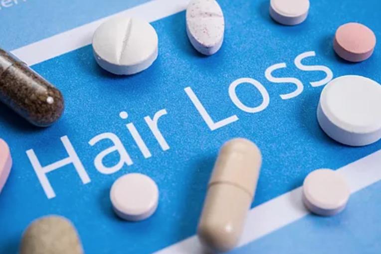 hair loss treatment Singapore