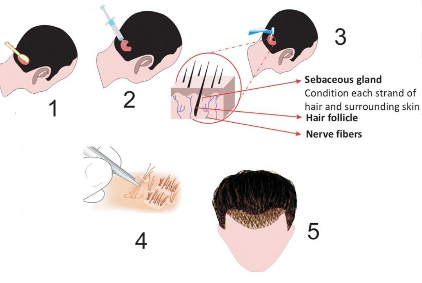 hair transplant Singapore