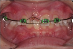 Fig. 3 Braces have been placed to tract the upper right central incisor out.