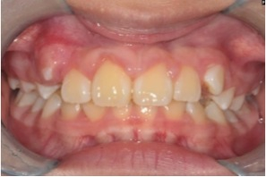 Fig. 4 Braces have successfully tracted the upper right central incisor out into position.