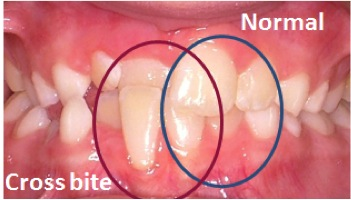 Fig. 5 Cross-bite: The upper right central incisor in cross-bite with the lower right central incisor.
