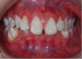 Fig. 6 Deep bite: where the lower incisors are biting on the upper gums.