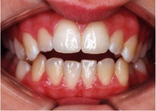 Fig. 7 An open bite where the upper and lower front teeth do not meet.