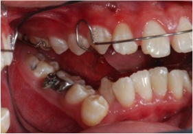 Fig. 8.2 During treatment: Braces and a functional appliance help to advance the lower jaw.