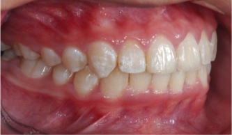 Fig. 8.3 After treatment: it's a success!
