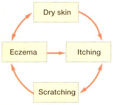 Vicious circle eczema