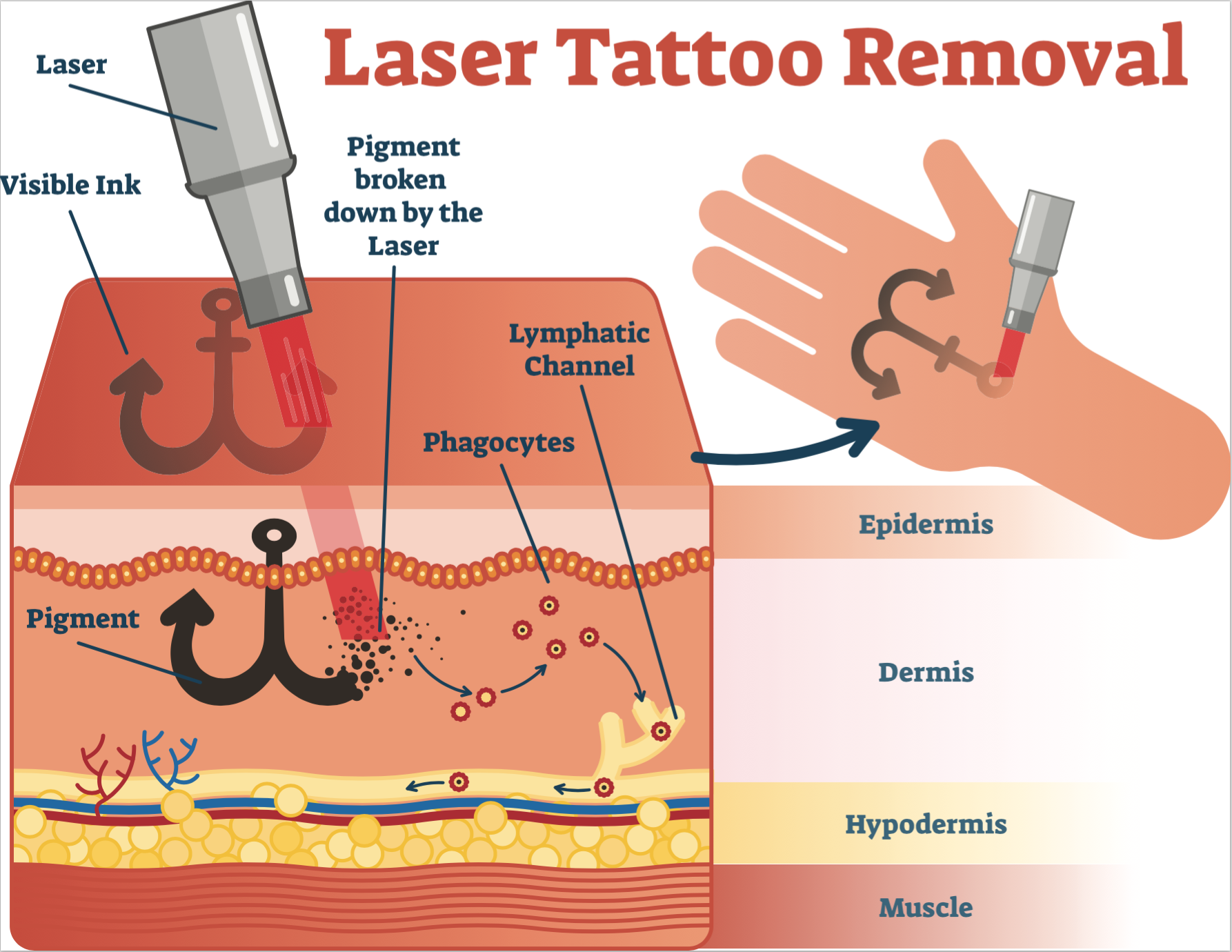 tattoo removal Singapore