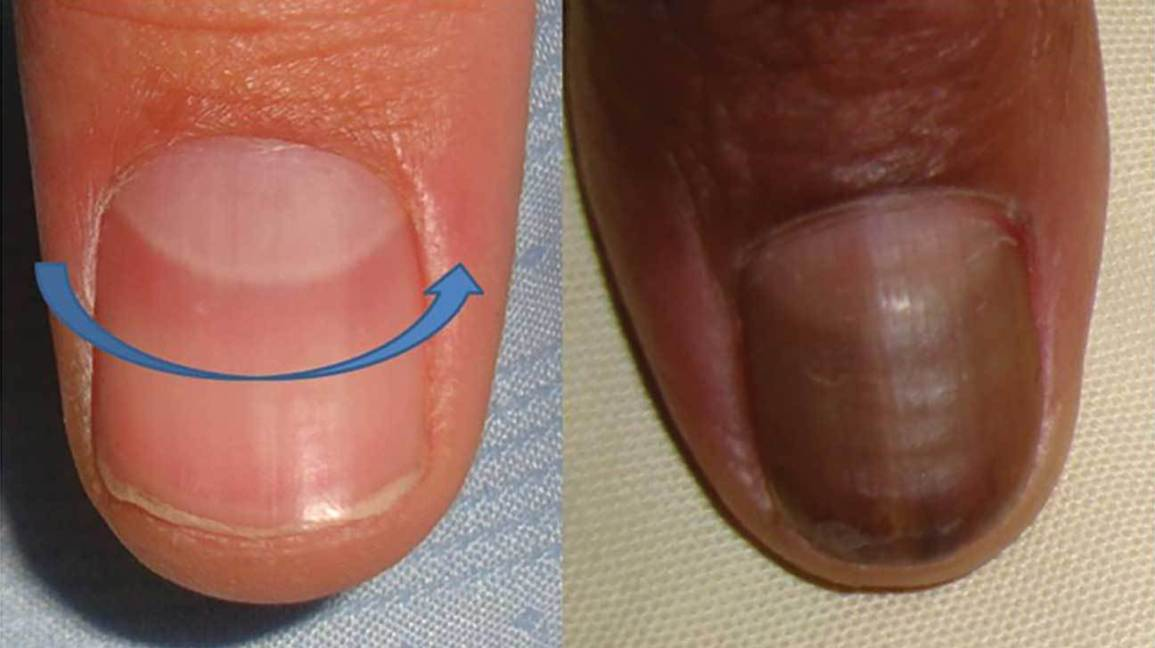 Bluish finger nails