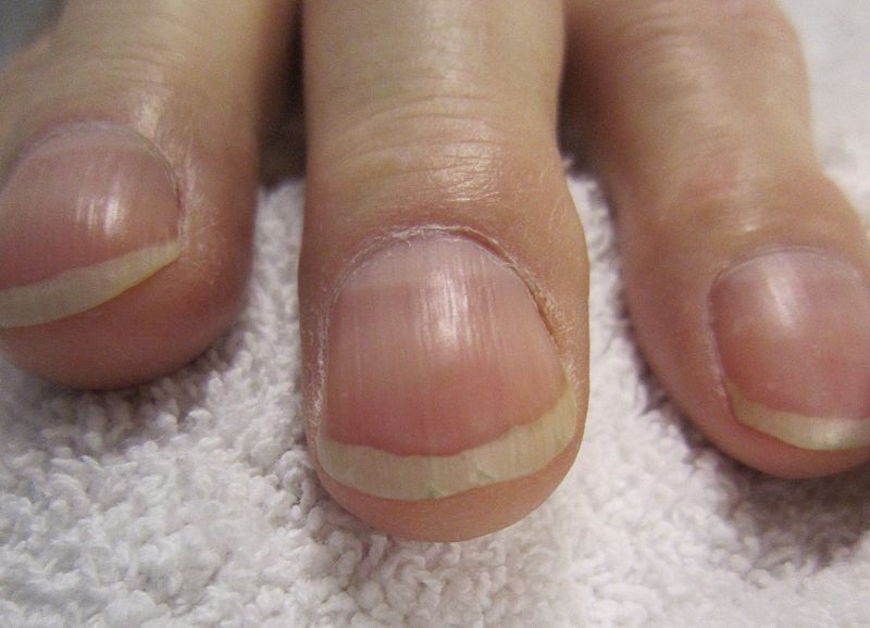 Pictures of clubbed fingernails