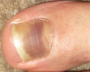 Cause of discoloured toenails