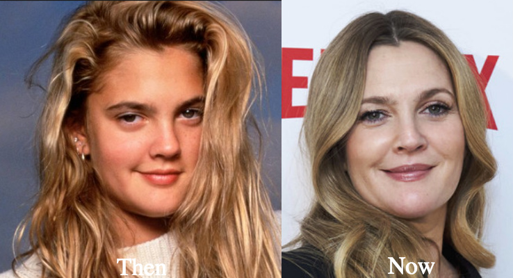 Drew barrymore before and after breast reduction