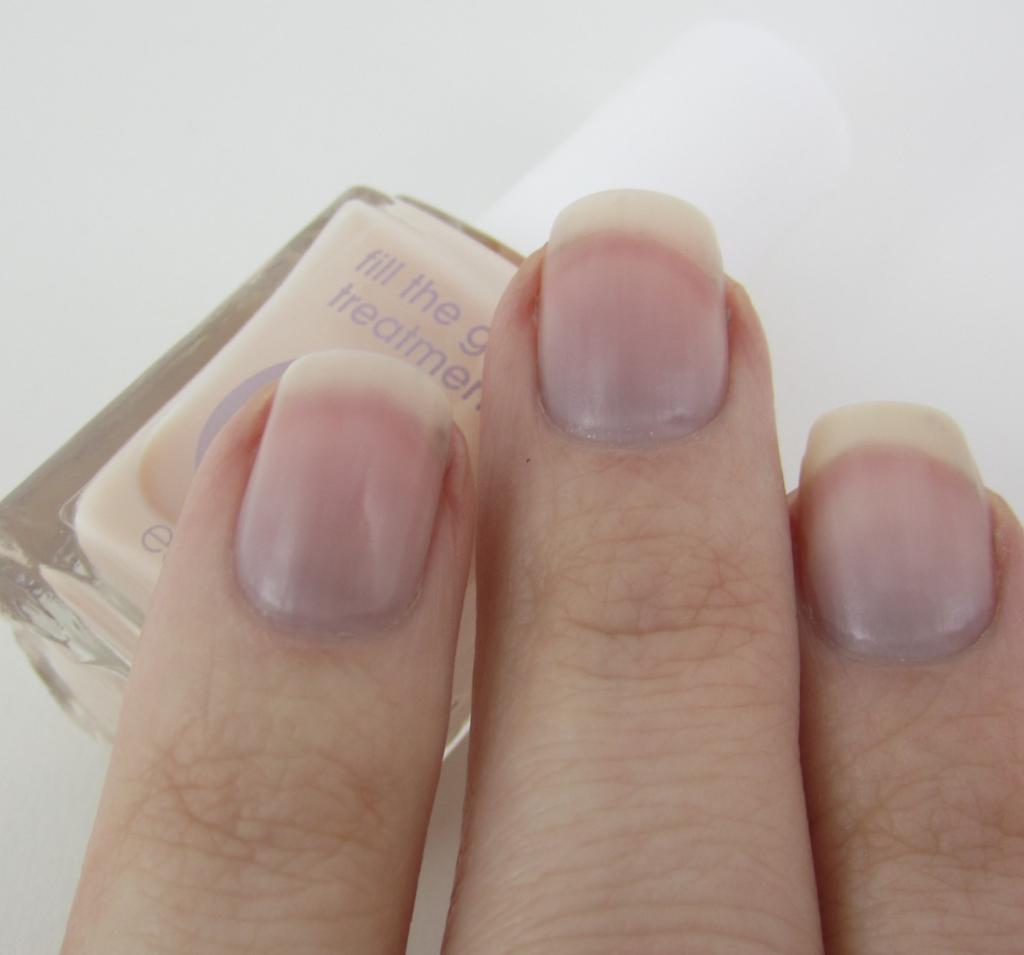 Bottom of fingernails purple