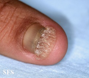 Pictures of toenails with fungus