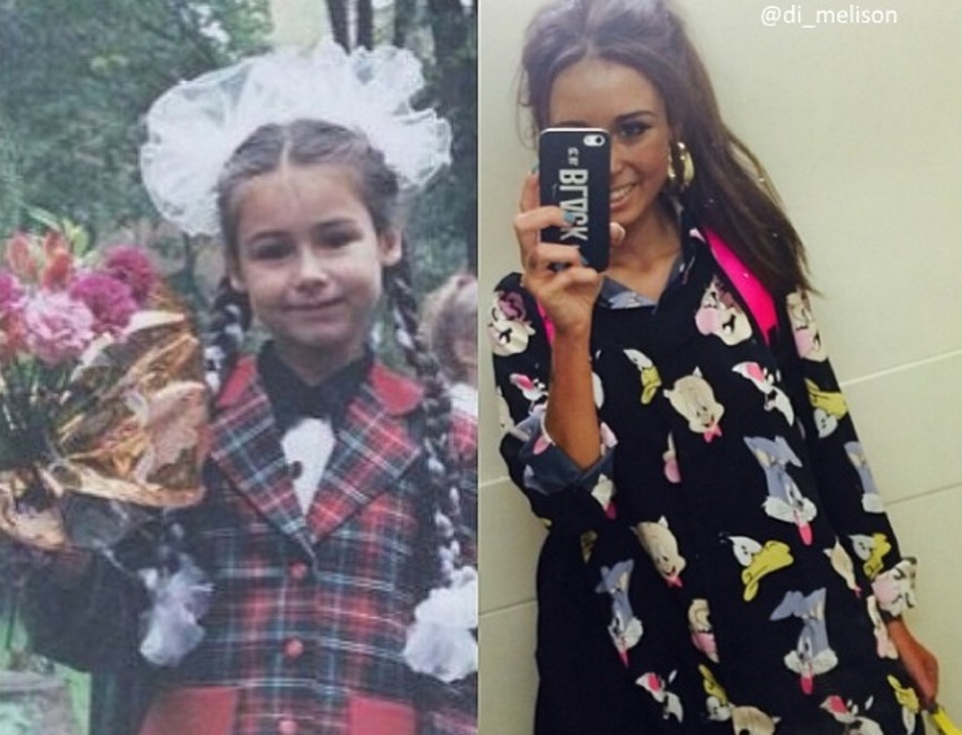 Диана Мелисон до и после пластики