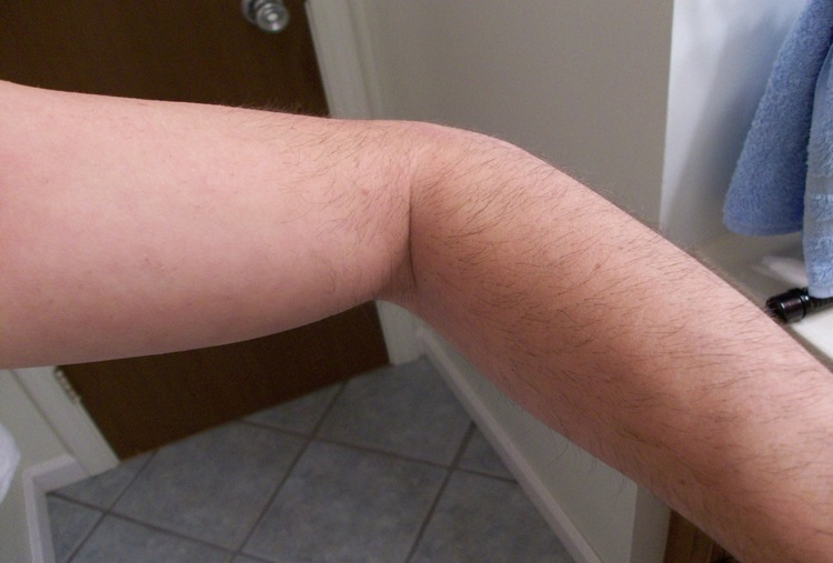 FULL ARMS HAIR REDUCTION