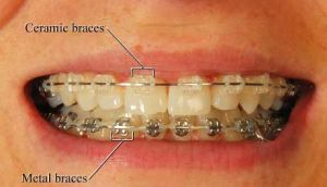 Dental Clinic offering orthodontic treatment in South Delhi, India at best price.