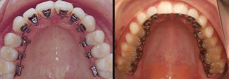 orthodontic treatment in South Delhi
