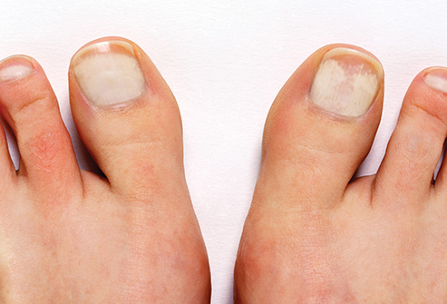 Pictures of discolored toenails