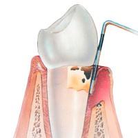 Пародонтозный зуб