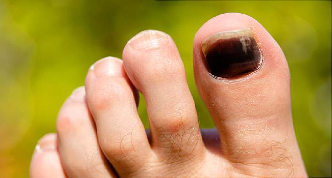 Thick dark toenails