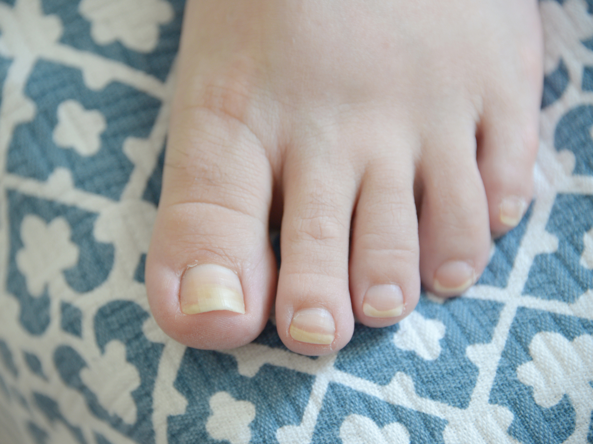Cure for yellow nails