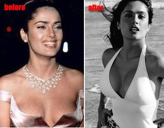 Celebrities implants