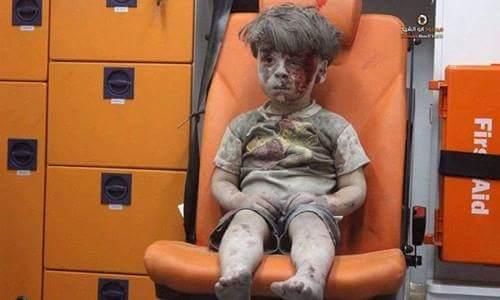 Omran Daqneesh - 5 tuổi, một cậu bé ở Syria, ngồi thất thần trên ghế sau của xe cứu thương,...