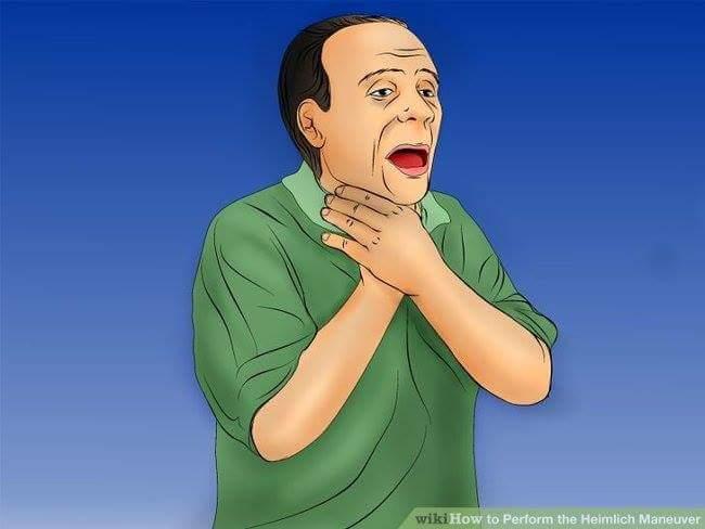 THỦ THUẬT SƠ CỨU HEIMLICH KHI BỊ HÓC DỊ VẬT  Thủ thuật sơ cứu Heimlich (đẩy bụng) là thủ thuật...