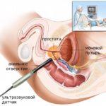 Аденома предстательной железы 2 степени лечение