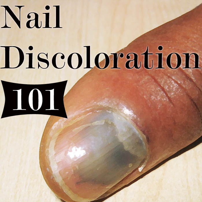 What does discoloration of the nails mean